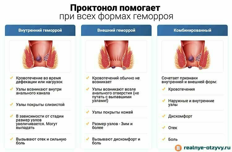 ????⚕️ геморрой: симптомы, причины и лечение простыми словами
