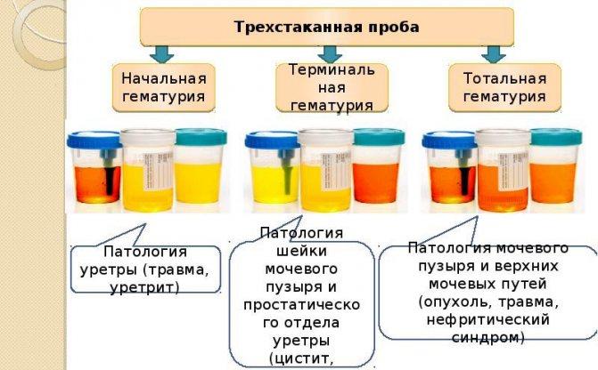 Кровь в моче у женщины: причины, лечение, кровь в моче с или без боли