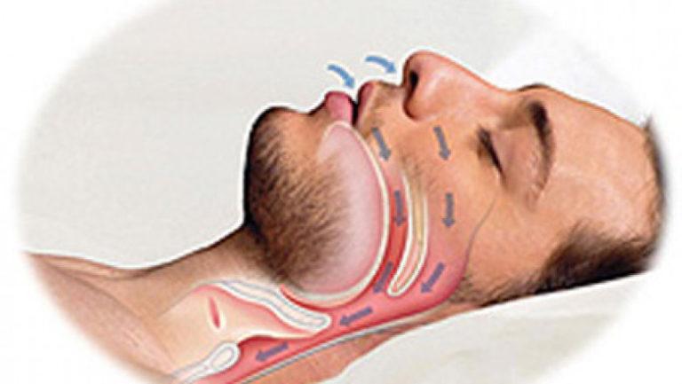 Апноэ - лечение, причины, симптомы апноэ сна у детей