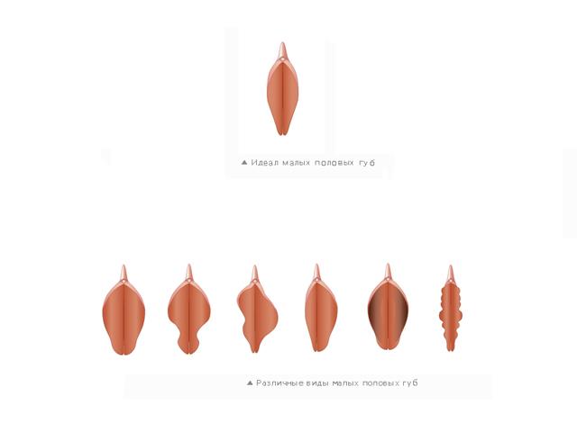 Размер половых губ - от чего зависит и какой бывает