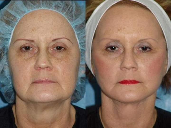 Эффективные комплексы упражнений от брылей на лице