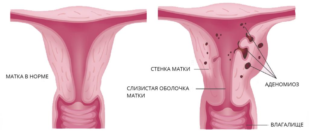 Эндометриоз: 6 основных причин возникновения заболевания у женщин