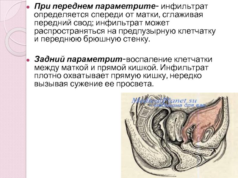 Параметрит: симптомы и лечение заднего, хронического, острого и др форм + фото