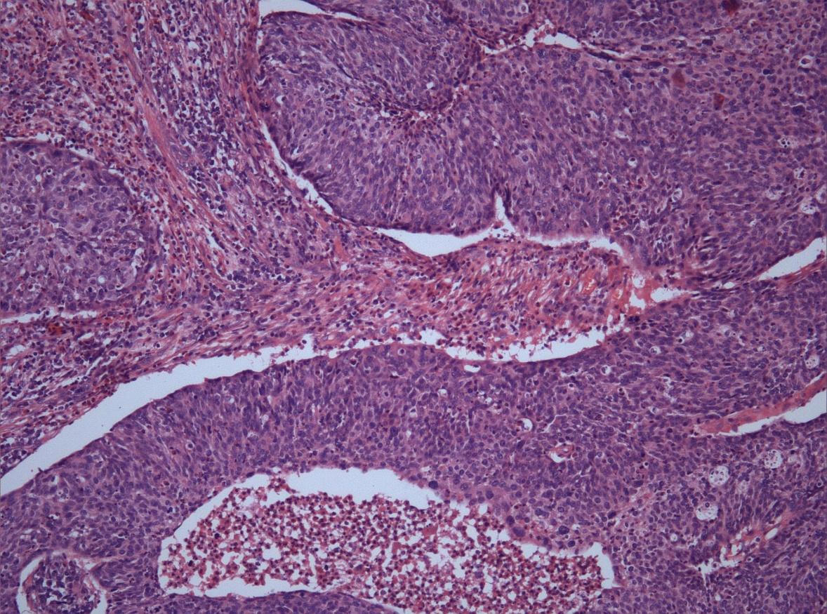 Гистология шейки матки | университетская клиника