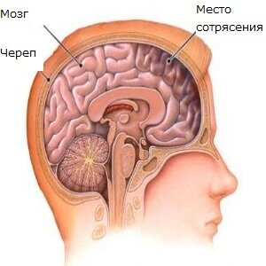 Лечение сотрясения головного мозга у взрослых в домашних условиях:  способы терапии, как быстро помочь пострадавшему?