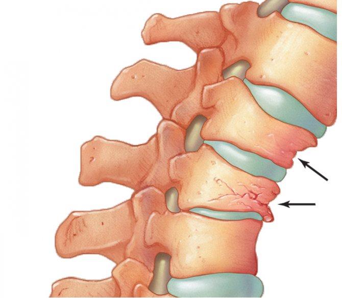 Последствия компрессионного перелома позвоночника поясничного, грудного отдела