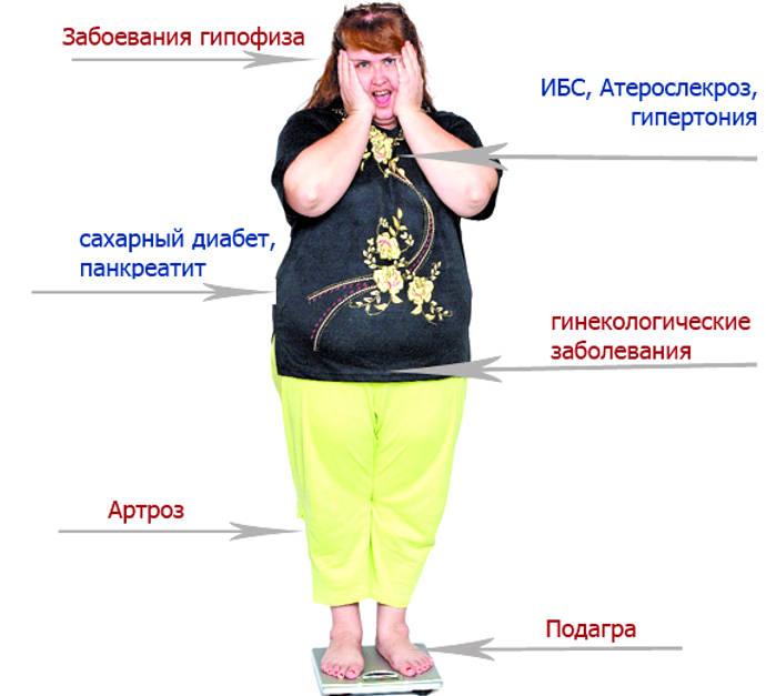 Метаболический синдром. причины, симптомы и признаки, диагностика и лечение патологии.