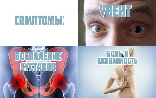 Причины, симптомы и лечение болезни бехтерева у женщин