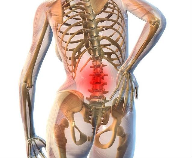 Что такое люмбалгия вертебральная с мышечно тоническим синдромом