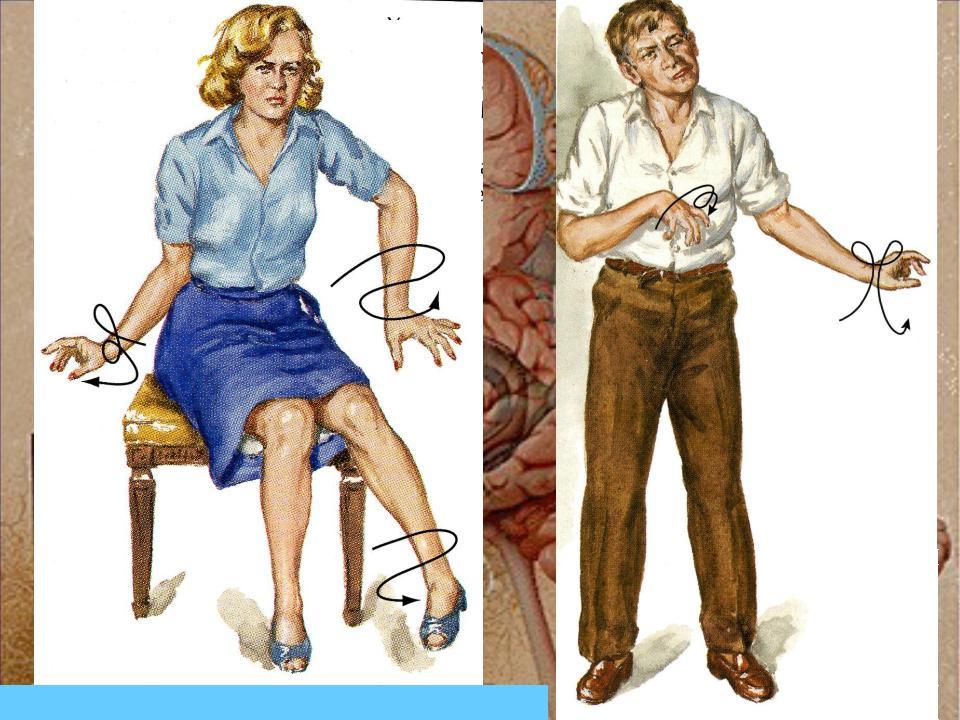 Хорея гентингтона: причины, симптомы, диагностика и лечение