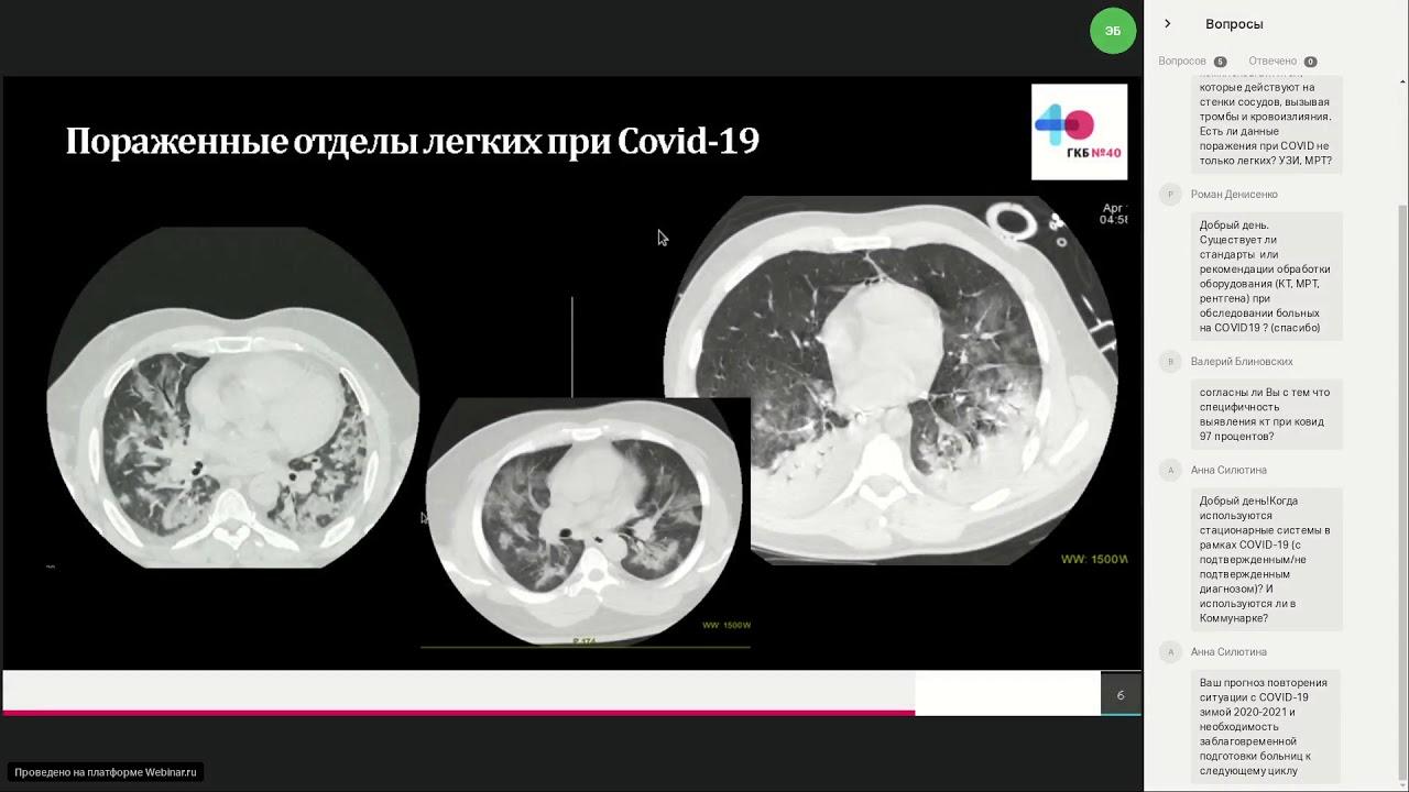 """""""легкие - в труху"""". что врачи рассказывают о последствиях коронавируса"""