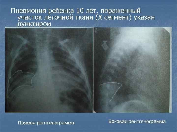 Двусторонняя полисегментарная пневмония причины, методы лечения и профилактика
