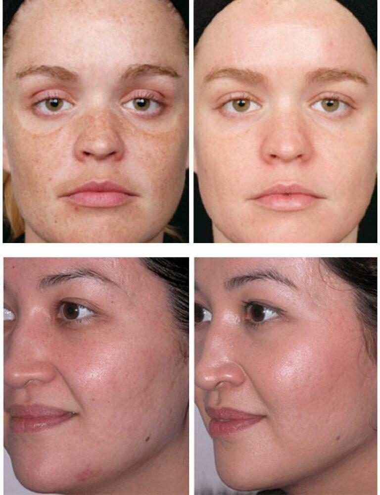 Энзимный пилинг для лица, тела: что это такое, как делать