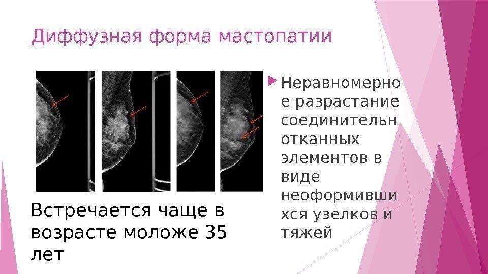 Мастопатия - признаки, симптомы, причины, диагностика и способы лечения заболевания
