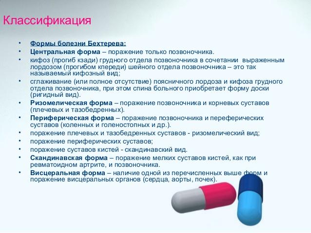 Болезнь бехтерева: причины, симптомы, классификация