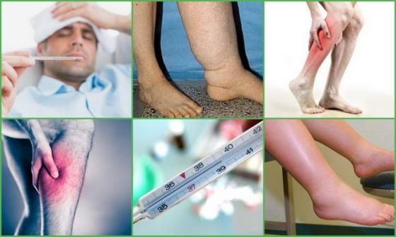 Тромбофлебит — что это такое, симптомы, признаки и лечение