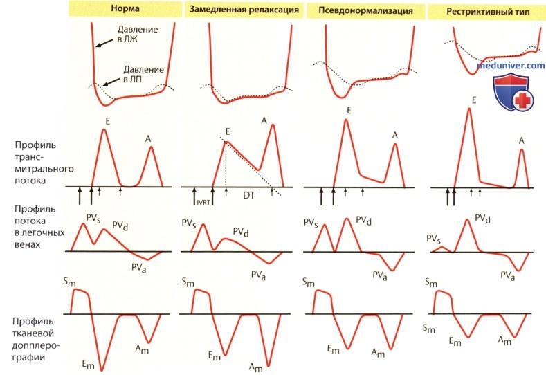 Диастолическая дисфункция левого желудочка по ригидному типу