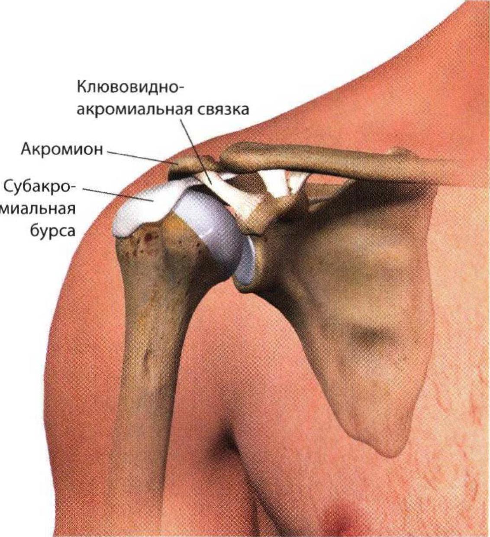 Симптомы и лечение бурситов локтевого и плечевого суставов