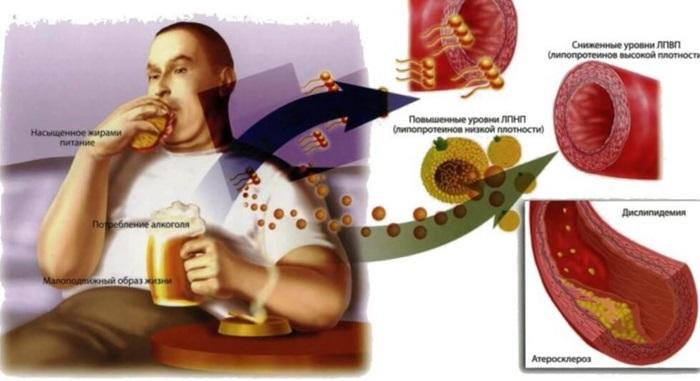 Гиперхолестеринемия - наследственная (семейная), причины, лечение, диета