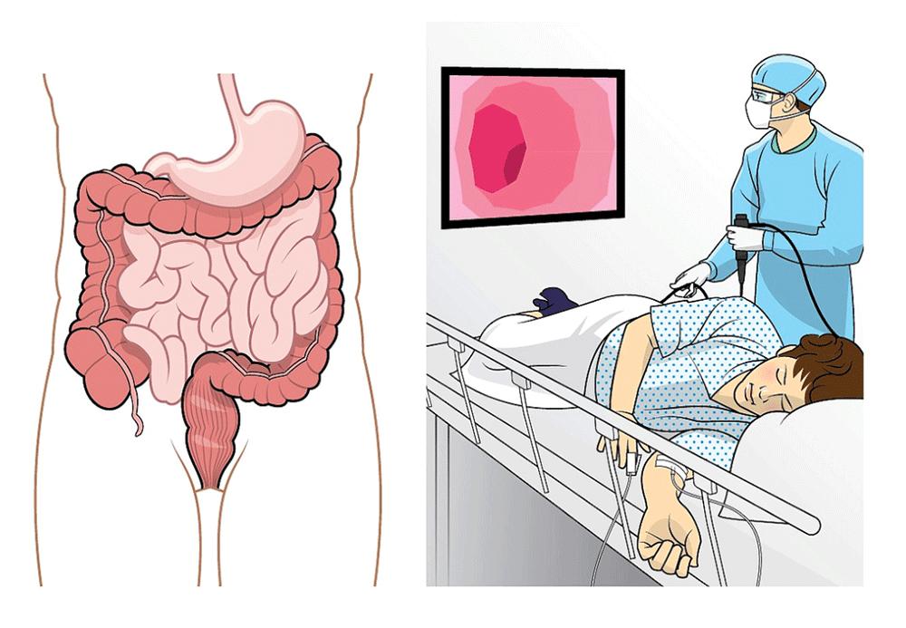 Что такое ректороманоскопия и как ее делают - подготовка, инструменты, этапы, как проводится ректосигмоколоноскопия, видео процедуры