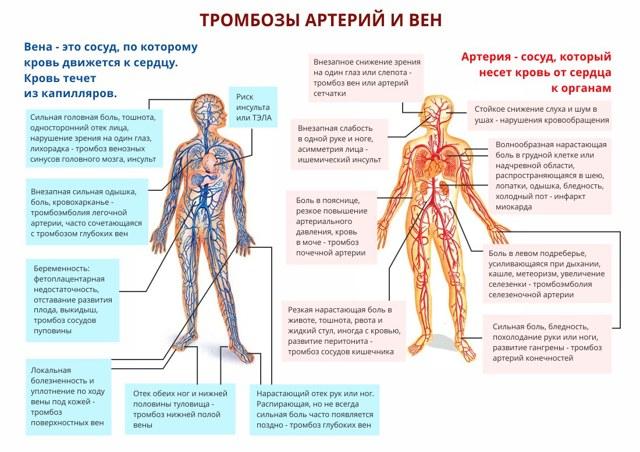 Тромбоз - что это такое и от чего бывает: симптомы и причины тромбообразования
