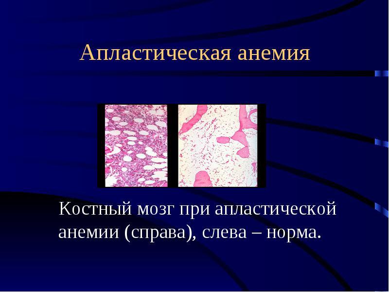 Апластическая анемия: что это такое, симптомы, причины заболевания