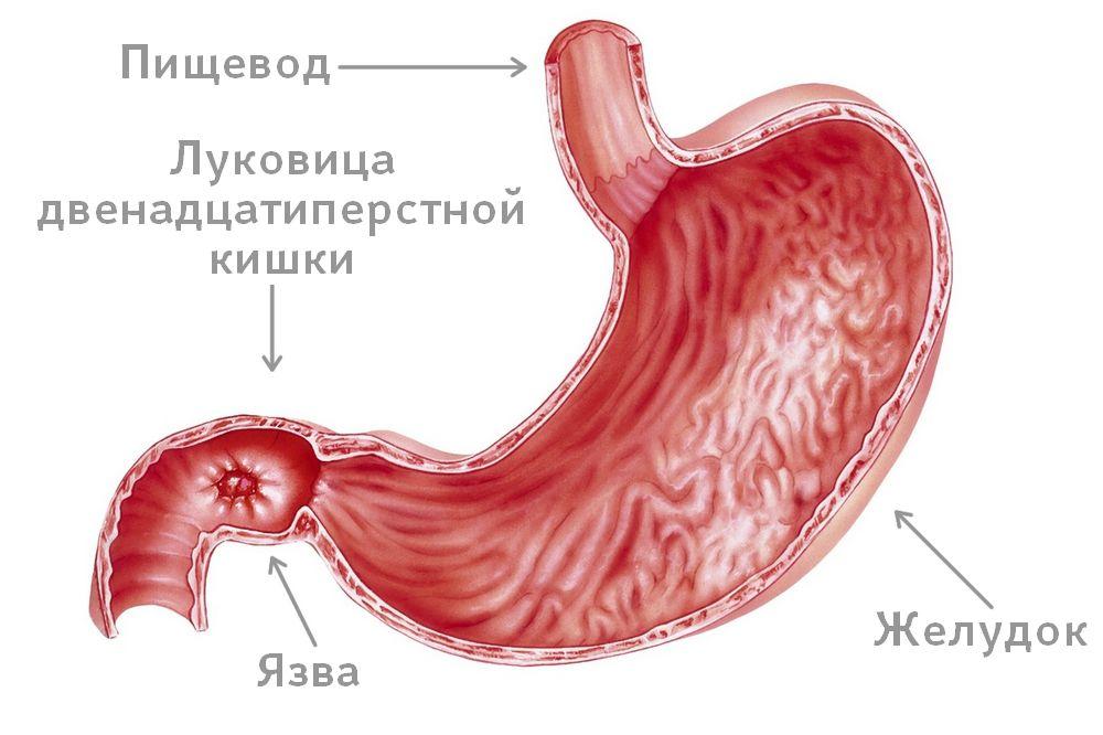 Что такое бульбит - описание, признаки и симптомы, лечение