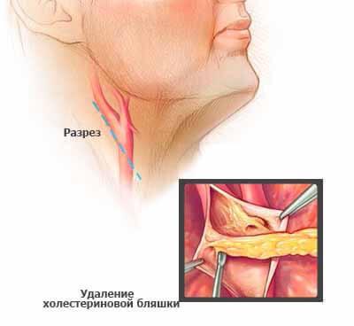 Причины и лечение атеросклероза церебральных сосудов