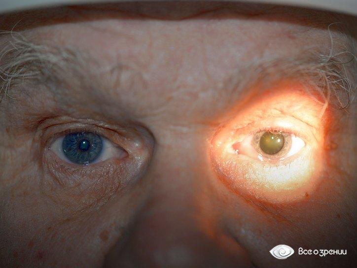 Афакия глаза: что это такое, коррекция, признаки, причины и профилактика