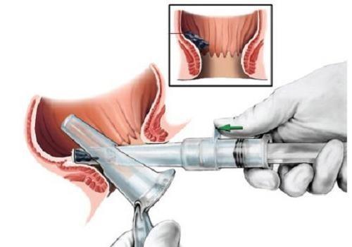 Проведение аноскопии: как подготовиться к процедуре, что показывает ректороманоскопия