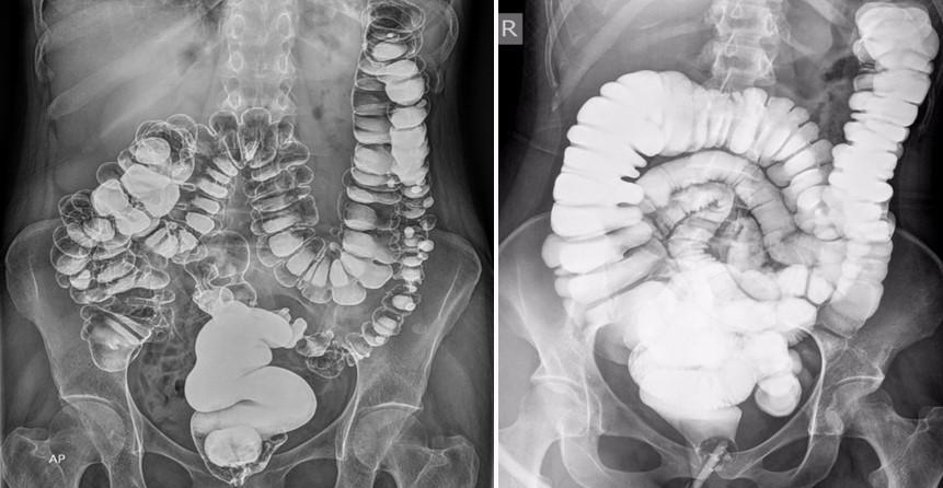 Ирригоскопия кишечника: показания, противопоказания, подготовка к исследованию