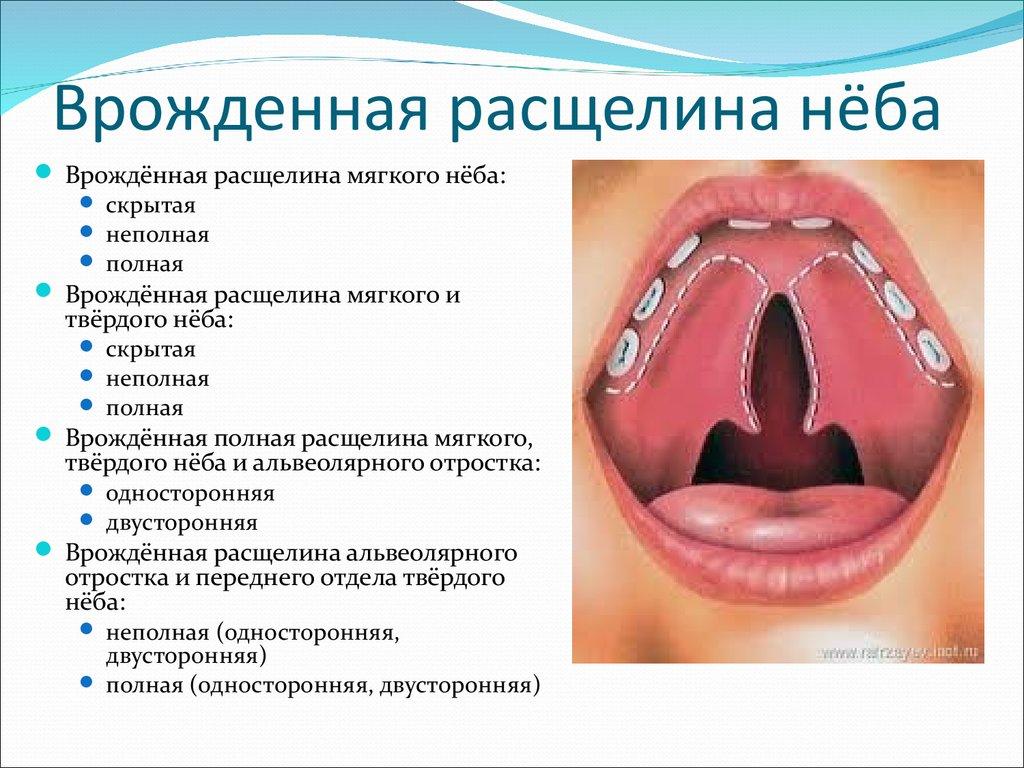 Заячья губа. часть 1. введение. показания. анатомия. противопоказания   портал 1nep.ru