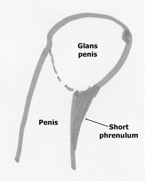Короткая уздечка крайней плоти: причины, как узнать, симптомы, как растянуть, лечение