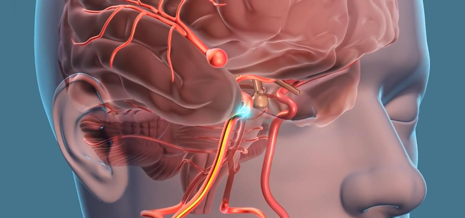 Аневризма сосудов головного мозга — большая медицинская энциклопедия