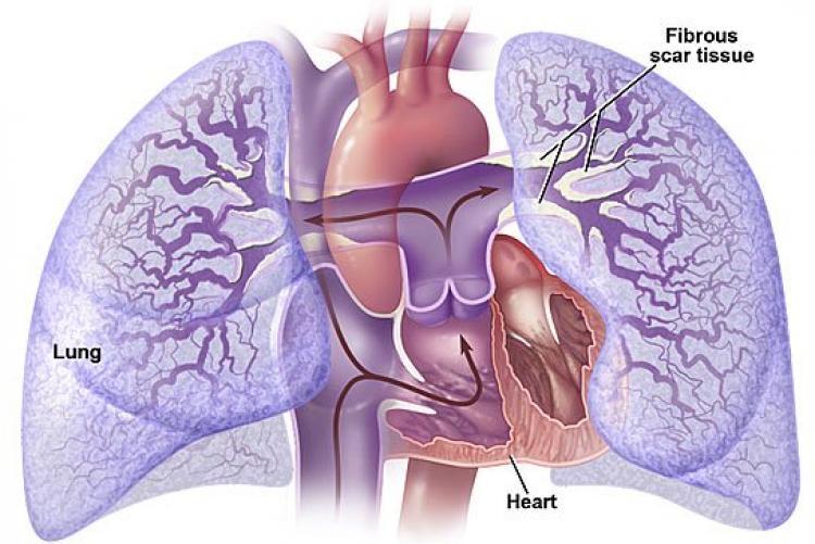 Легочное сердце - симптомы и диагностика, лечение и прогноз