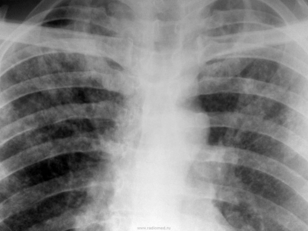 Туберкулема легких; лечение туберкулемы | eurolab | инфекционные болезни
