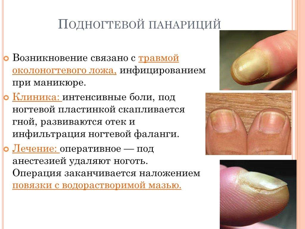 Панариций на пальце: виды, причины, симптомы, лечение в домашних условиях