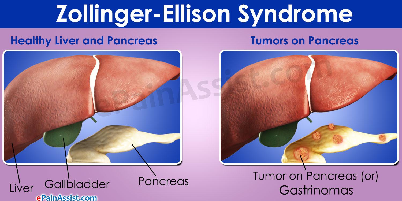 Синдром золлингера — эллисона
