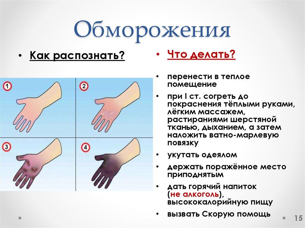 Что такое обморожение: первая помощь, степени обморожения, лечение и профилактика травмы