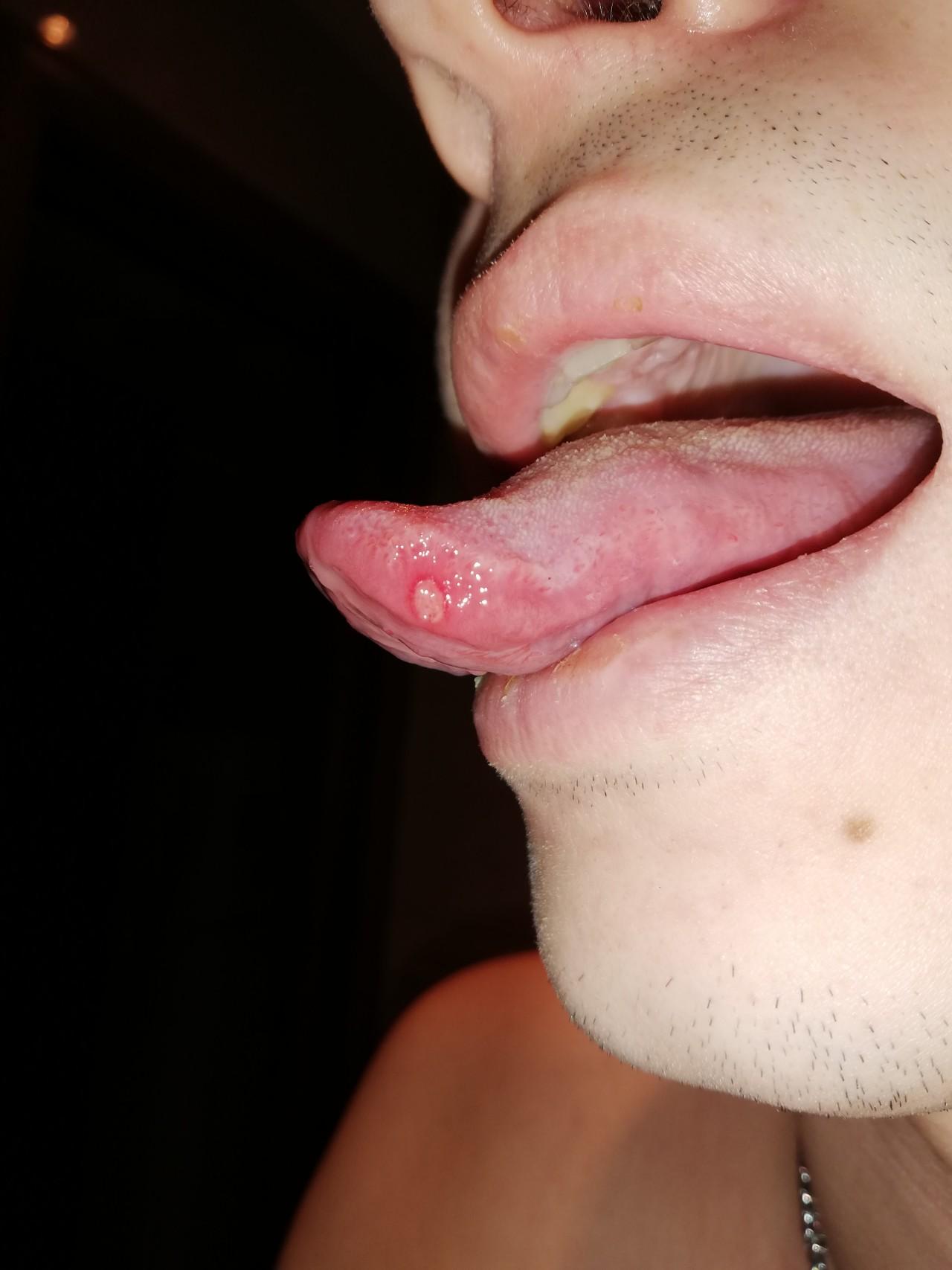 Что такое типун на языке и почему он появляется. симптомы и лечение типуна на языке что такое типун на языке - заболевания-мед
