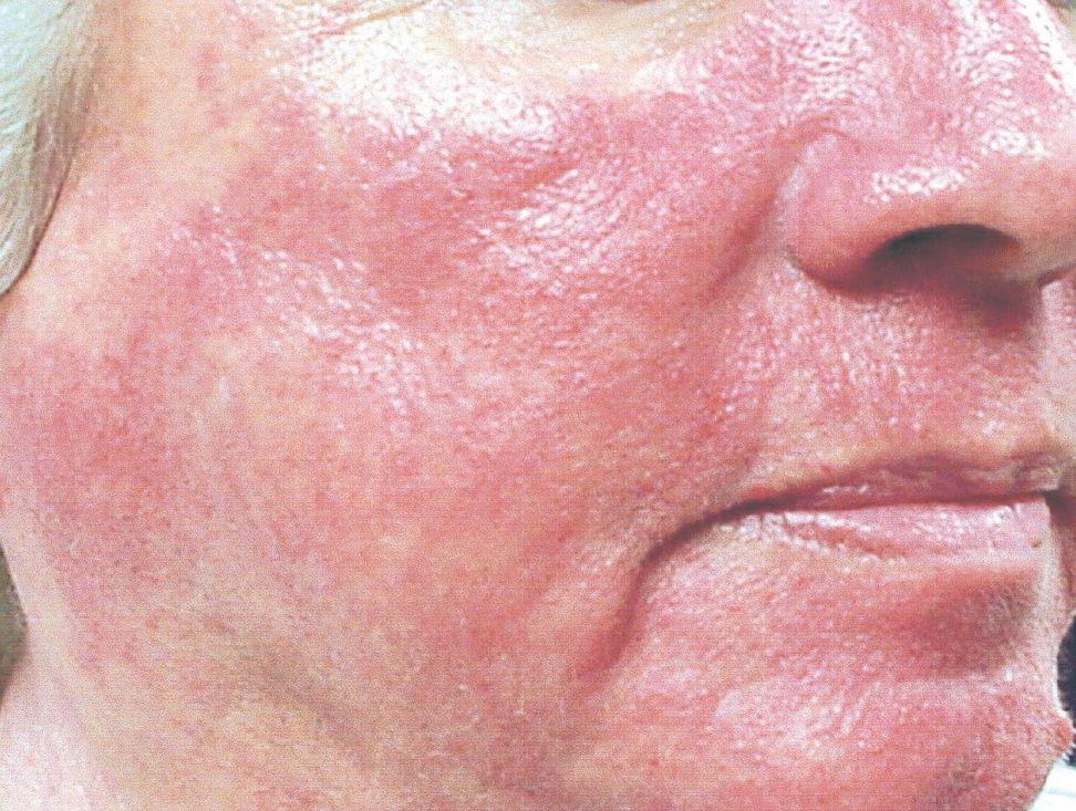 Гиперемия: виды, симптомы, причины и лечение