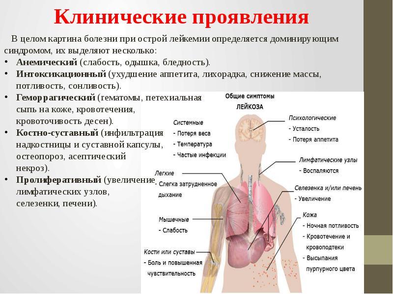 Острый лимфобластный лейкоз: симптомы, прогноз жизни