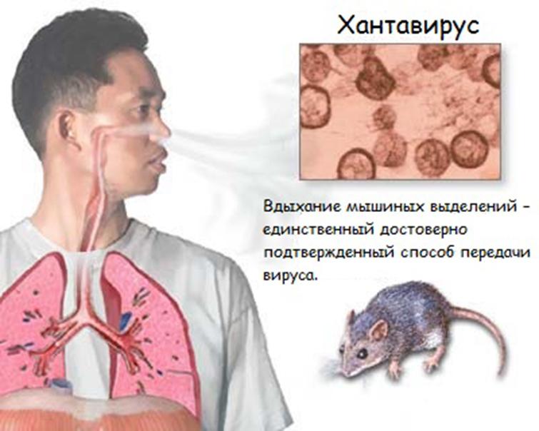 Хантавирус: что это такое, симптомы, лечение, распространение, как передается - 24сми