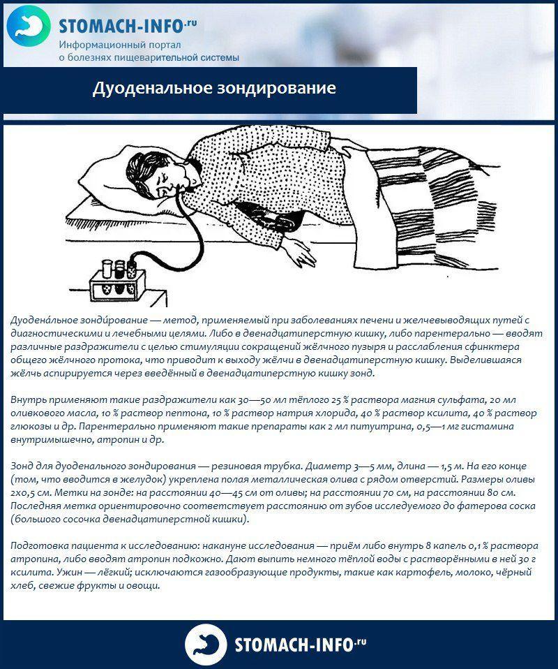 Дуоденальное зондирование: виды, подготовка, техника проведения