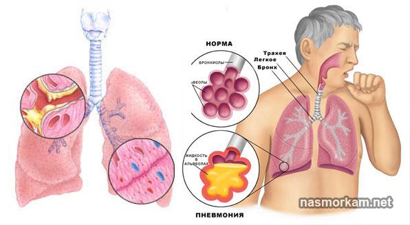 Белая мокрота: причины появления, болезни и их признаки, диагностика, лечение