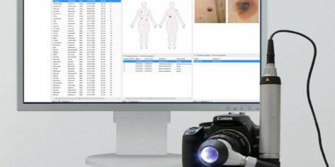 Цифровая и ручная дерматоскопия – что это такое, для чего и где применяется