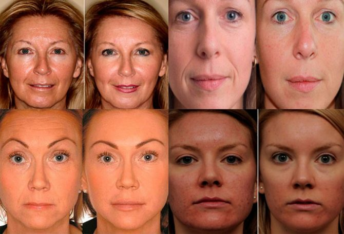 Лазерное омоложение лица как способ восстановления кожи (2019)
