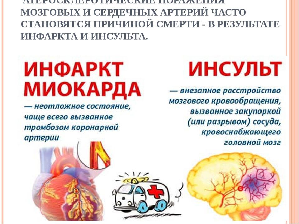 Основные отличия инсульта и инфаркта