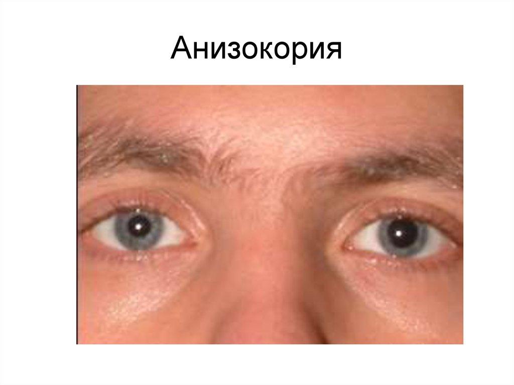 Анизокория - причины, виды и лечение болезни у взрослых и детей