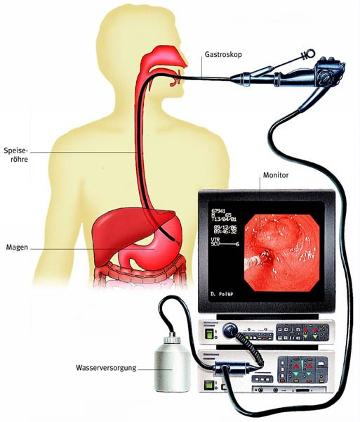 Фгдс желудка (фиброгастродуоденоскопия): подготовка и как делают процедуру